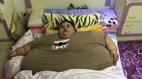 Världens fetaste kvinna opererad