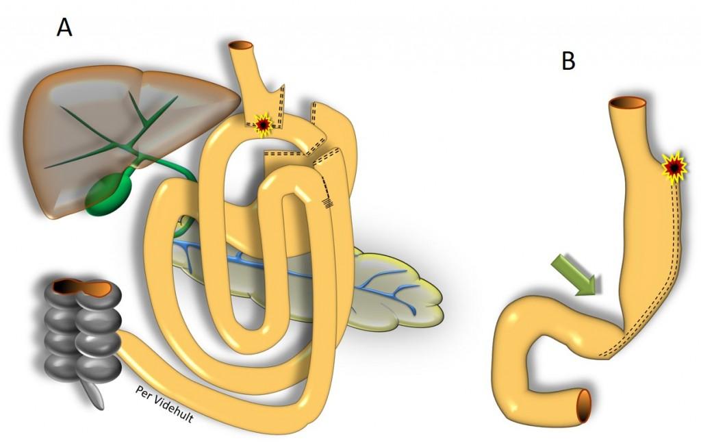 Esofagusnära läckage